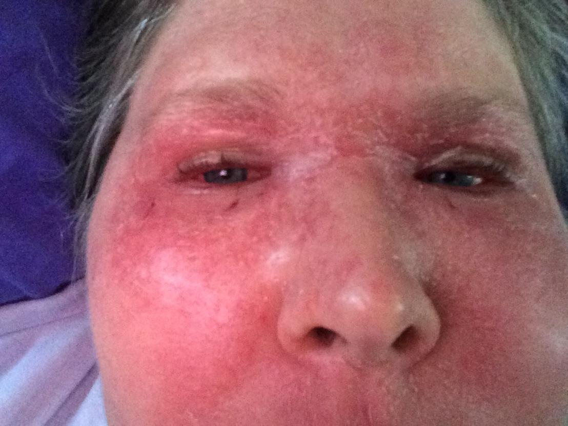 Jenny after chem attack